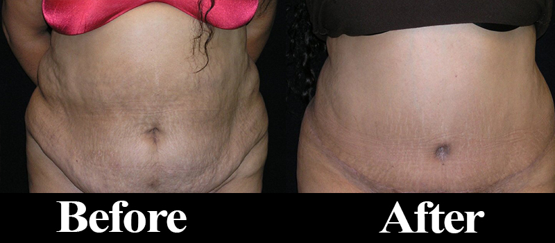 Liposuction Denver