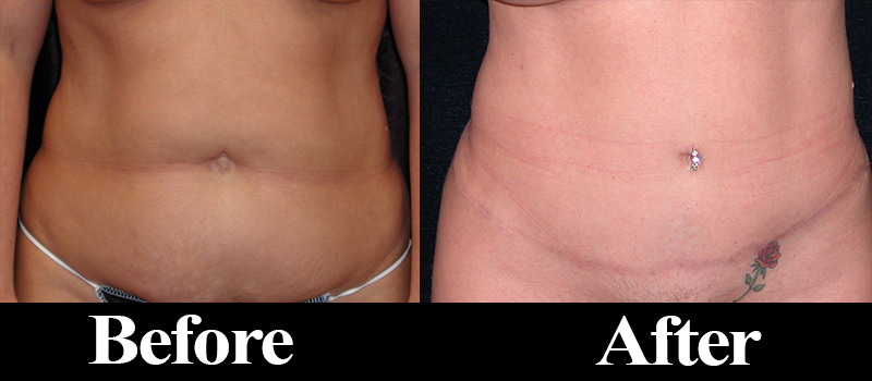 tummy tuck denver