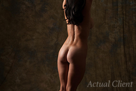Denver Liposuction